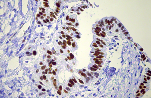 pancreatic cancer breakthrough)