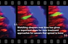 Finding dormant cancer cells