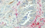 Genomics yields a new understanding of pancreatic cancer