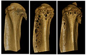 Promising new therapeutic approach rebuilds and strengthens bones in multiple myeloma