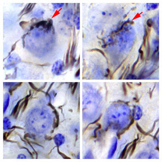 Endbulbs of Held showing hearing loss, deep inside mouse cochlea.