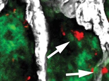Visualising sleeping cancer cells within bone
