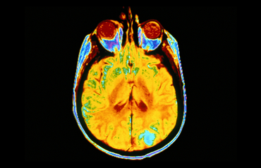 A new diagnostic approach for neurodegenerative disorders